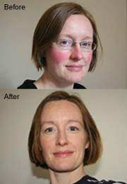Skin Capers Rosacea Redness Cheeks Nose